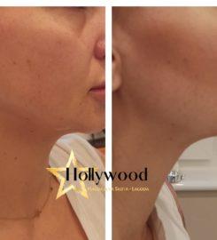 Salon Urody Hollywood, Makijaż permanentny, Kosmetologia estetyczna